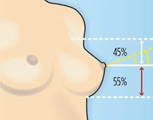 Типы и формы женской груди