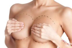 Реабилитационный период после увеличения груди