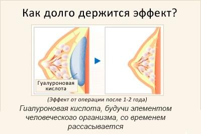 Увеличение груди с помощью гиалуроновой кислоты